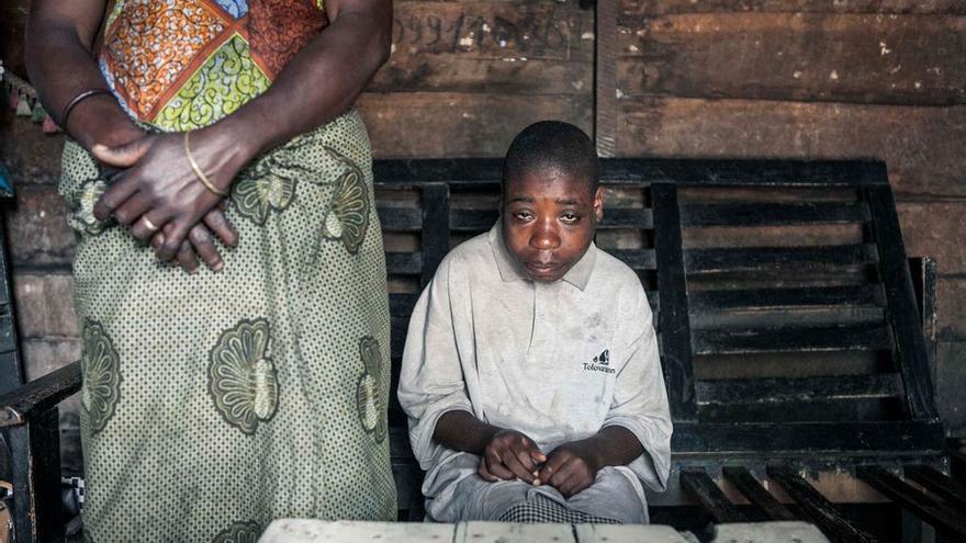 """Los niños discapacitados como Siuzione son llamados """"Biwelele"""" (idiota inútil).  Foto: Patrick Meinhardt"""
