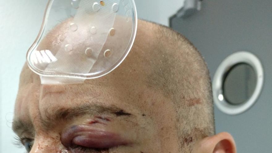 Ramón Gómez antes de la operación