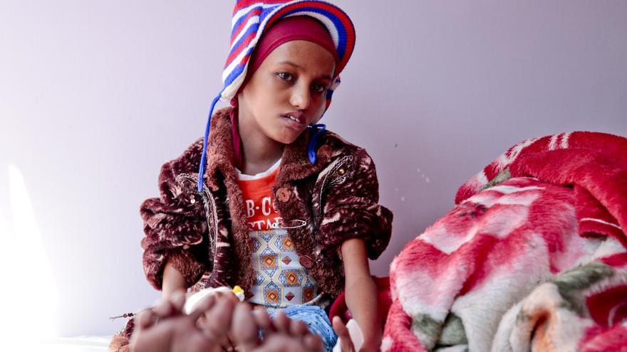 Saida, que está recibiendo tratamiento en el hospital Al-Sabeen de Save the Children en Sana'a, tiene 18 años pero se parece más a una niña de ocho años.