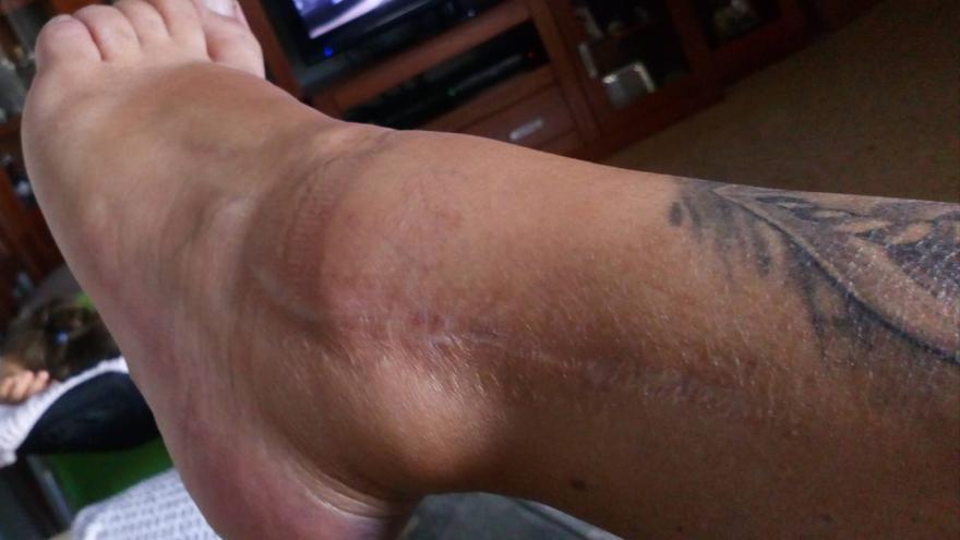 Estado actual de la herida de Laura nueve años después y que le impide realizar esfuerzos y le obliga a andar con muleta.