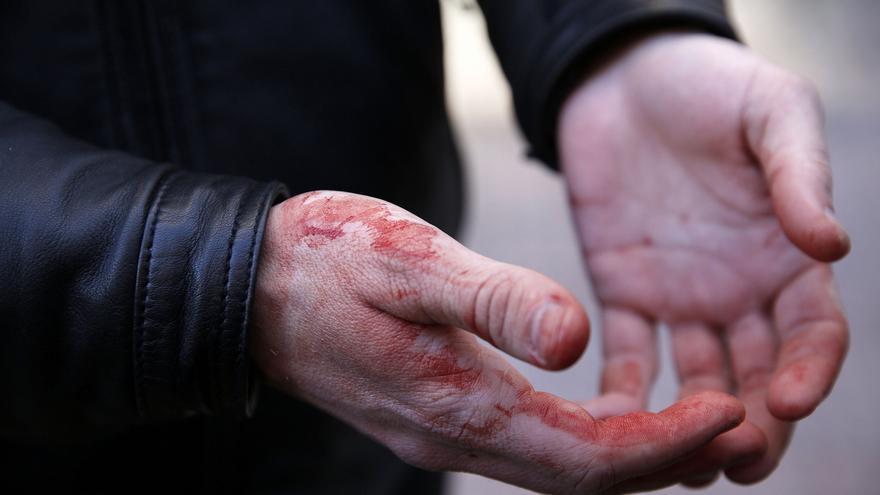 Un activista con las manos llenas de sangre que le brotaba de la nariz. Según afirmó un policía le propinó un puñetazo mientras lo sacaba del patio de la vivienda.