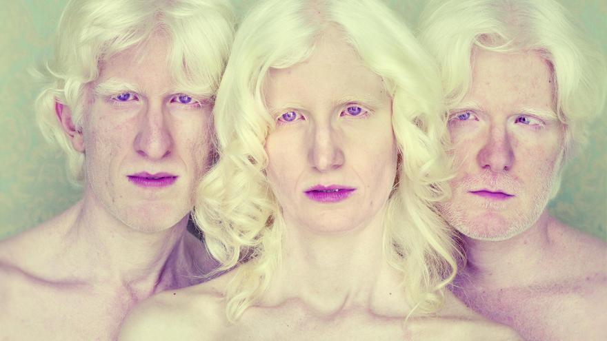 'Marcus, Andreza y André', de la serie 'Albinos' (2014), de Gustavo Lacerda.