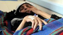 Las muertes por el cólera en el Yemen aumentan hasta los 859 casos