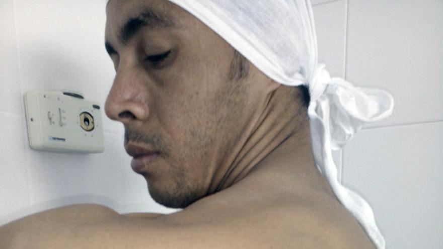 Uno de los internos presuntamente agredidos muestra las marcas de los golpes en el costado