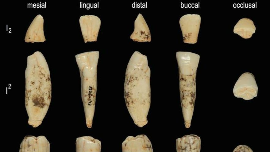 Piezas utilizadas en el estudio de los dientes deHomo antecessor.EFE/José María Bermúdez de Castro.