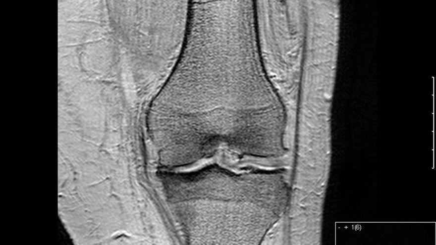 El 90% de prótesis de rodillas anuales que se implantan en España se programan para corregir los efectos de la artrosis