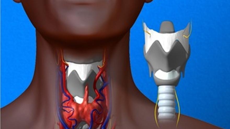 Trasplante de laringe