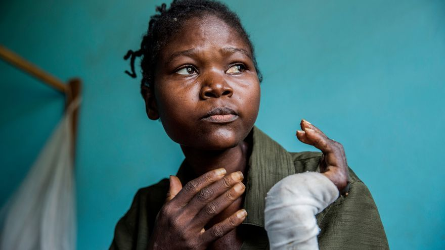 A Ntumba Kasomba (31 años) tienen que amputarle el brazo izquierdo por una antigua herida de machete. A ella y a su familia les atacaron los milicianos en su pueblo natal, Senge. Vio cómo niños pequeños recibían cortes de machete. Ha visto morir a cinco de sus hijos y su esposo recibió un disparo. Solo entre 50 y 100 personas de su pueblo han sobrevivido a la violencia. © Marta Sosynska / MSF