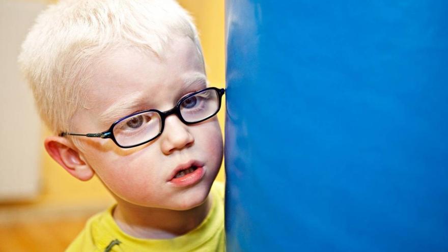 Las personas con albinismo tienen como característica común: la discapacidad visual severa. También pueden manifestar una alteración en la pigmentación.
