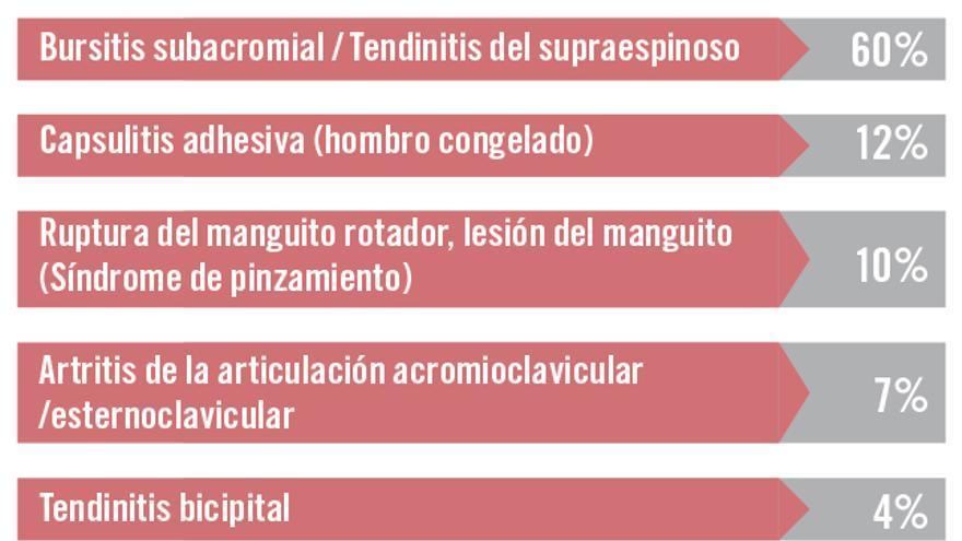 Lesión del supraespinoso del hombro