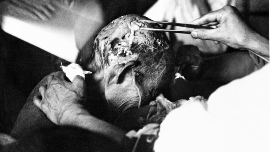 Un sobreviviente de Nagasaki recibiendo cuidados médicos el 31 de agosto de 1945. © Eichi Matsumoto/UN Photo