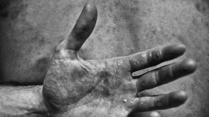 Las secuelas de una vida dedicada al remo. | HUMBERTO BILBAO ®