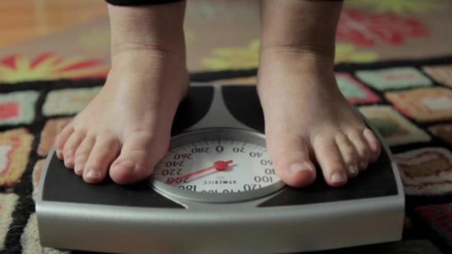 Las tasas de obesidad infantil se están acelerando en regiones pobres
