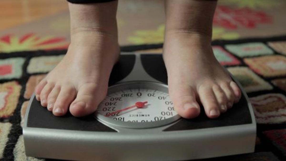 Las tasas de obesidad infantil se aceleran en regiones pobres