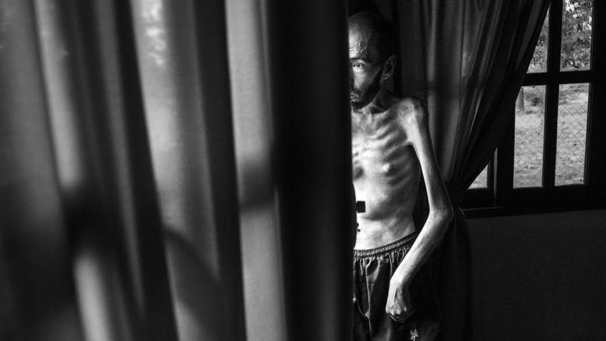 Durante años Fabián Tomasi trabajó durante años para una compañía de fumigación aérea, cargando y bombeando productos químicos. Sufre una neuropatía tóxica severa y actualmente está en tratamiento por atrofia muscular general, lo que le obliga a guardar cama. | Foto: Pablo E. Piovano