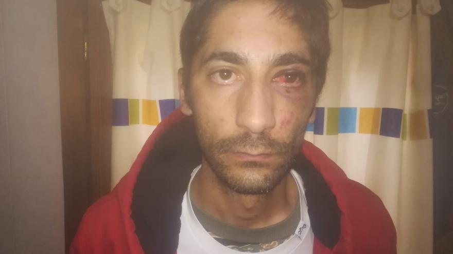 Francisco Calvo, que ha denunciado una presunta agresión por parte de agentes de la Policía Nacional.