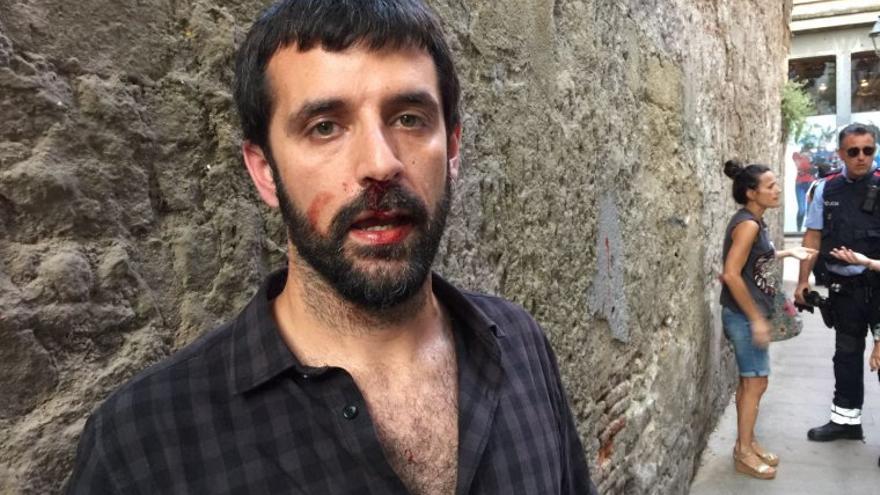 El fotoperiodista Jordi Borràs, tras la agresión
