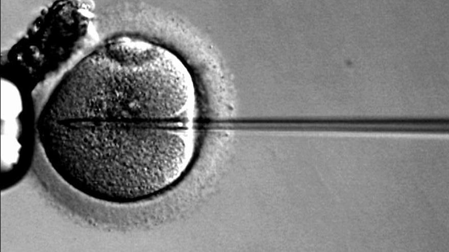 Introducción celular de esperma.