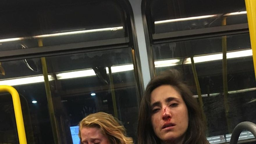Melania Geymonat y su Chris tras la agresión en una foto colgada en Facebook por la primera.