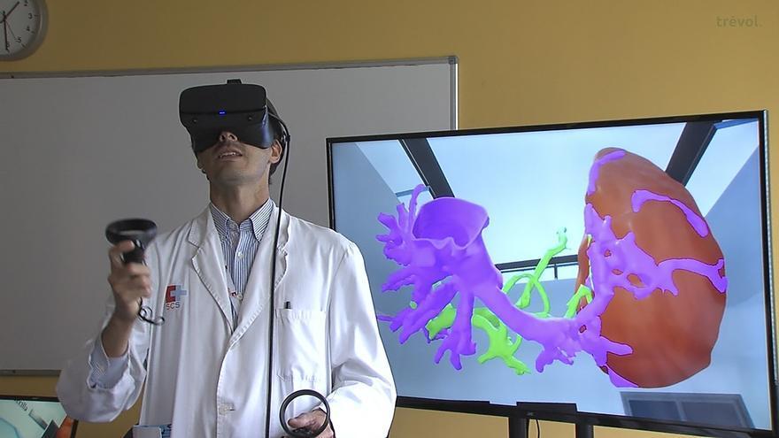 Valdecilla desarrolla por primera vez una intervención quirúrgica asistida y planificada mediante realidad virtual