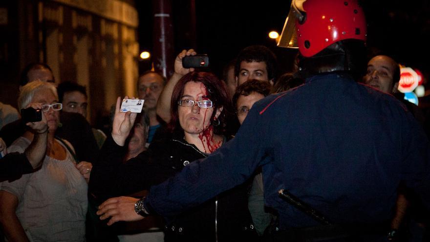 La senadora de Amaiur Amalur Mendizabal, con el rostro ensangrentado tras una carga de la Ertzaintza. /Javi Julio.