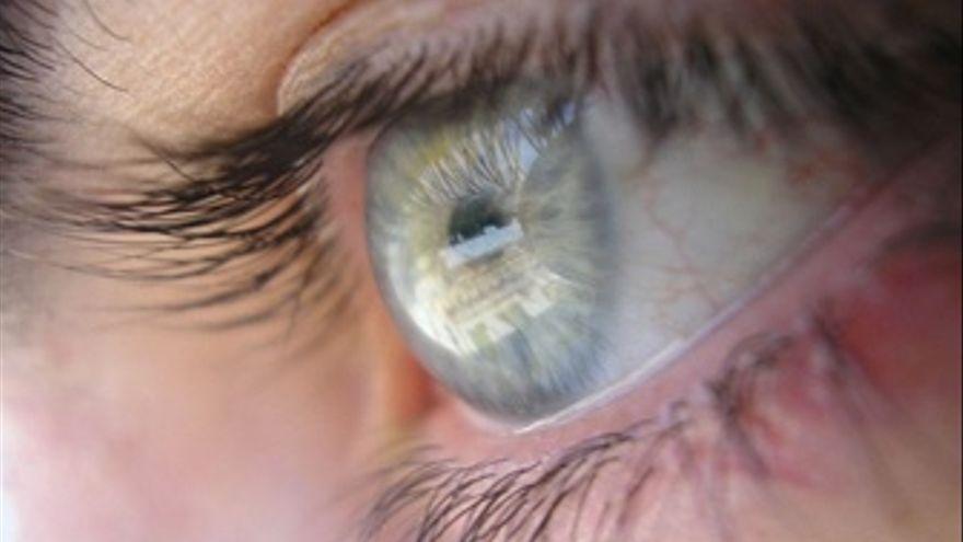 Imagen ojo.