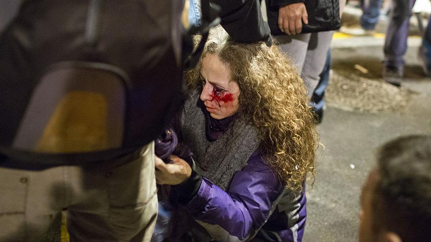 Una mujer pierde la vista de un ojo por el impacto de un disparo con bola de goma en la plaza de Catalunya durante la manifestación de la huelga. / Edu Bayer