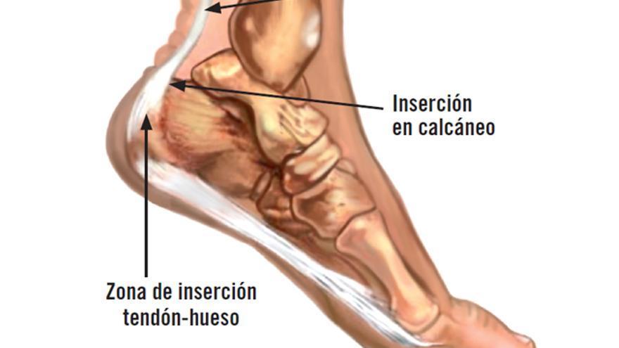 tendinitis aquilea