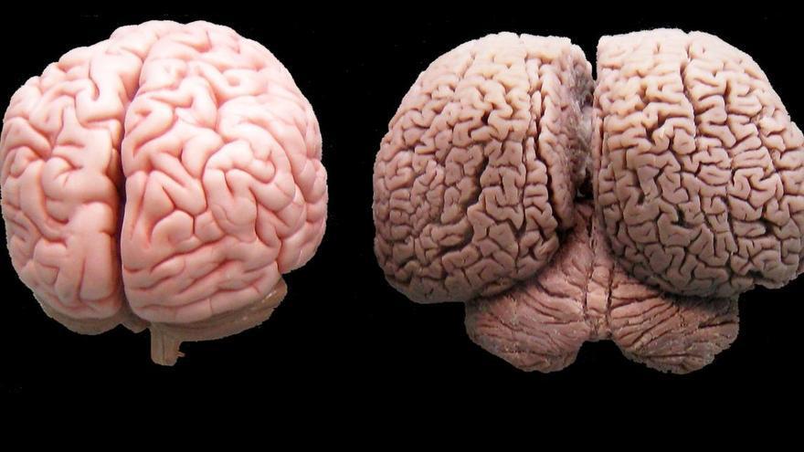 Cerebro humano y cerebro de delfín