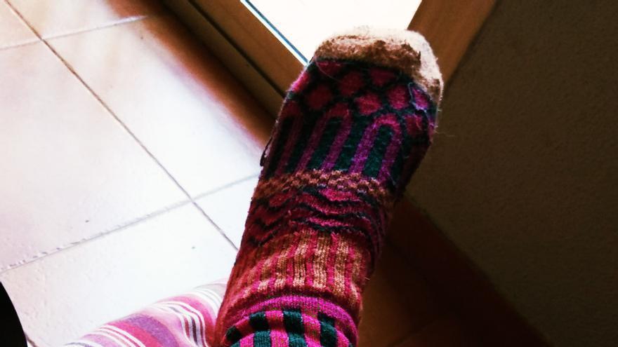 Mi pierna alienígena