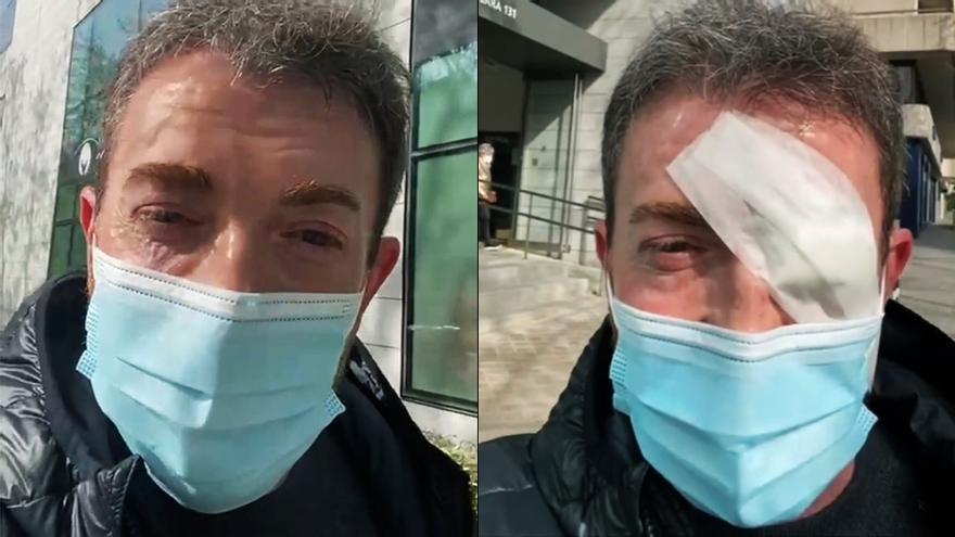 Pablo Motos tras su última operación