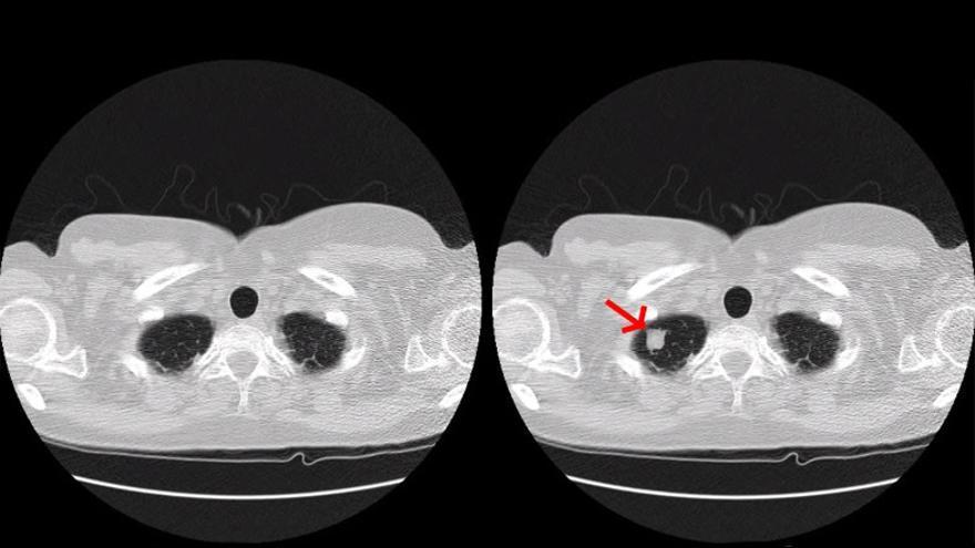 La imagen de la izquierda es un pulmón sano. La imagen de la derecha, del mismo pulmón, presenta un nódulo tumoral introducido artificialmente por el malware