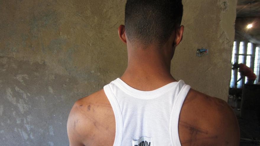 MAYO. La tortura sigue siendo una de las violaciones de derechos humanos que se comete con más impunidad. Este prisionero de Libia, que muestra las cicatrices que le han dejado los golpes recibidos, fue liberado sin cargos tres días después de estar bajo la custodia de las milicias armadas. Miles de personas se embarcan en viajes peligrosos tratando de alcanzar Europa para huir de violaciones de derechos humanos que se cometen en sus países. Sin embargo, no son bien recibidos. En 2012 Italia firmó un acuerdo con Libia sobre el control de la migración, sin garantías efectivas para los derechos humanos #ddhhSinFronteras // © Amnesty International