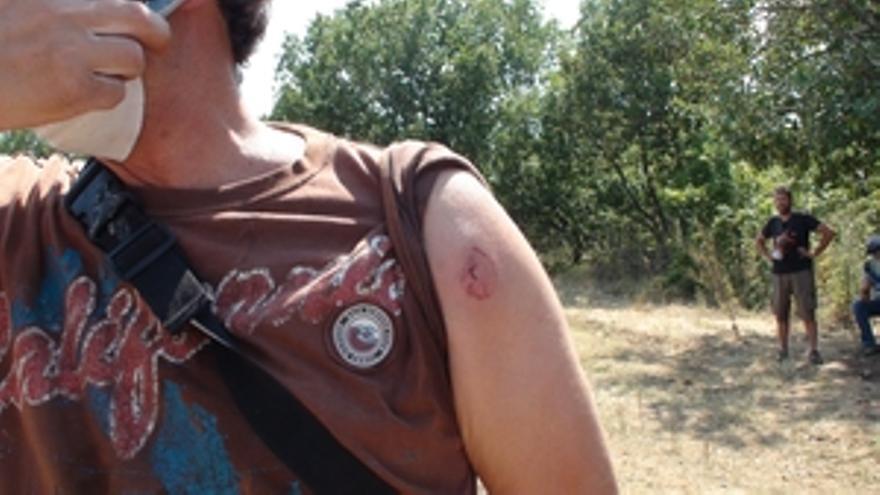 Una manifestante herida por el impacto de una pelota de goma en una manifestación en  Skouries, Grecia. © Alterthess