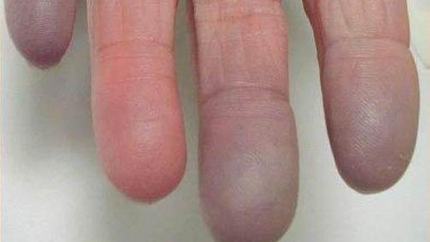 El fenómeno de Raynaud afecta a muchos pacientes con esclerodermia.