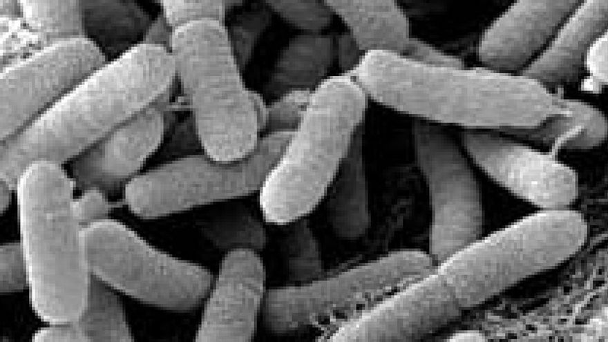 La bacteria de la Xylella Fastidiosa.
