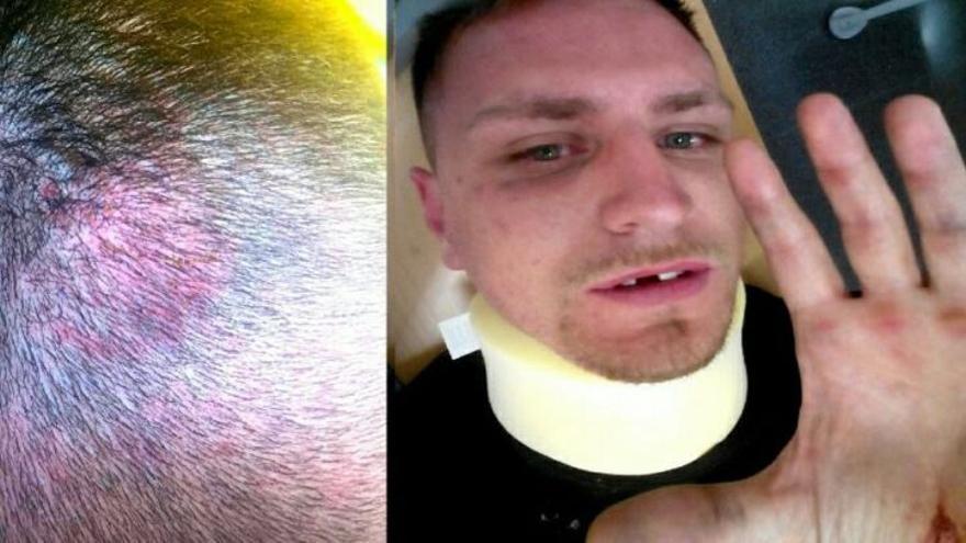 El animalista Oscar del Castillo, de Gladiadores por la Paz, tras ser brutalmente agredido en Las Ventas.