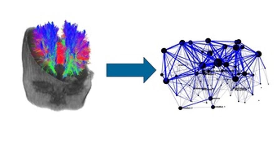 Construcción De Red Para Analizar Daño Cerebral