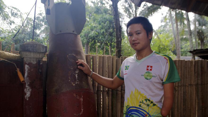 Víctima de una bomba estadounidense en Laos / Carlos Hernández