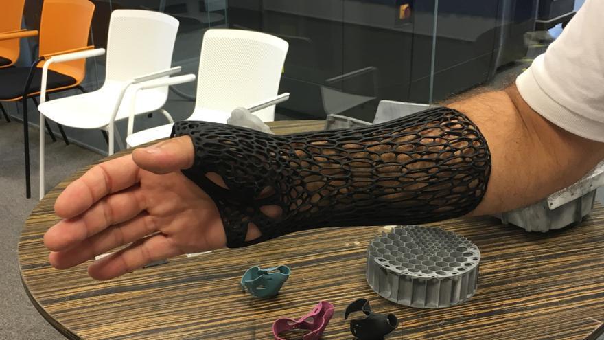 Una pieza que sustituye a la escayola hecha con impresión 3D