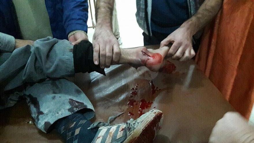 Uno de los 16 heridos que llegaron al hospital de Al Zafarana tras uno de los bombardeos con barriles explosivos. | Foto: Imagen facilitada por un profesional sanitario del centro apoyado por MSF.
