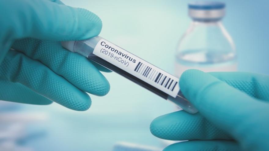 Sanidad notifica 8 muertes por Covid-19 y 149 nuevos casos confirmados en las últimas 24 horas