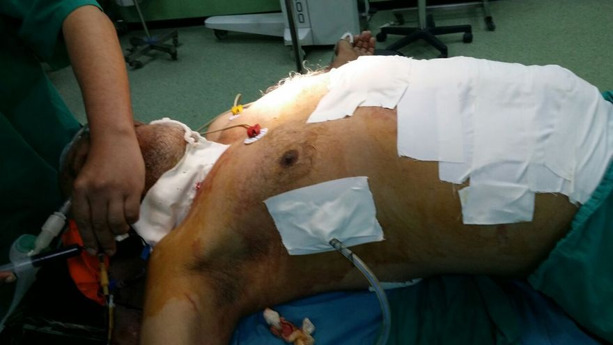Uno de los hombres heridos en el ataque a la escuela de la UNRWA en Beit Hanún. Foto: Manu Pineda, Unadijum.