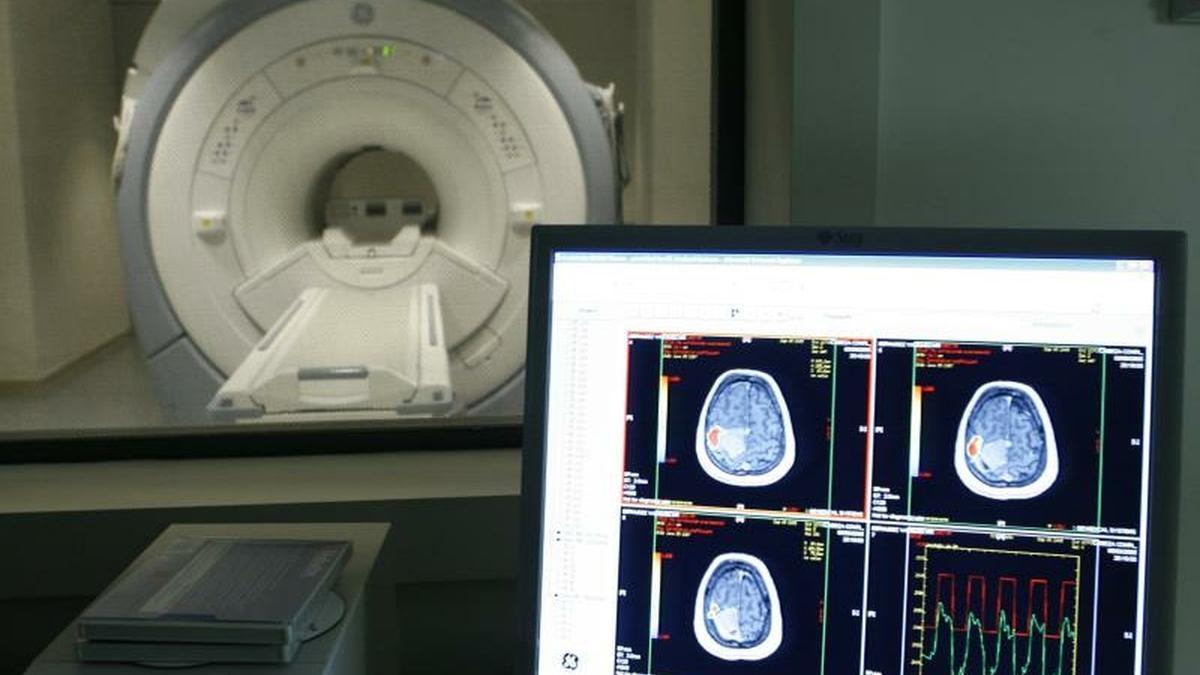 Identifican un circuito cerebral que podría señalar el riesgo de Alzheimer