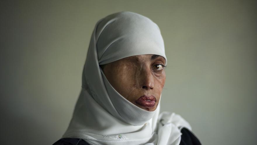 Busha Shari, atacada con ácido por su marido. Islamabad. Pakistan 2008