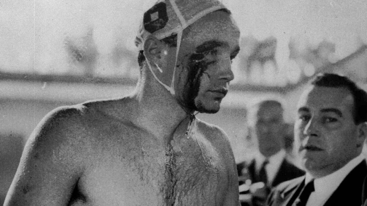 El waterpolista húngaro Ervin Zador fuera de la piscina tras la agresión.