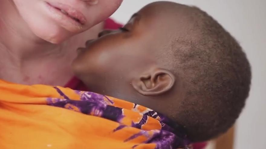 Fotograma del documental Black Man White Skin. Febronia, una de las mujeres albinas entrevistadas.