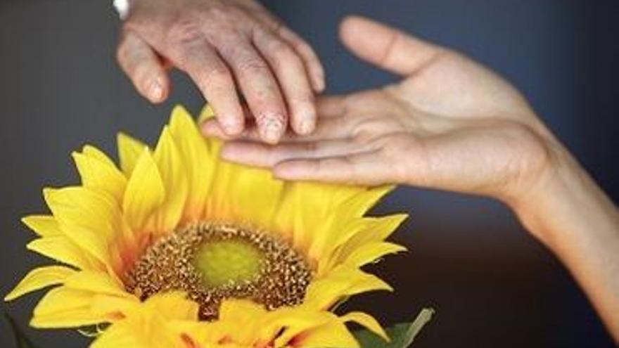 La esclerodermia suele dejar secuelas en manos y pies.