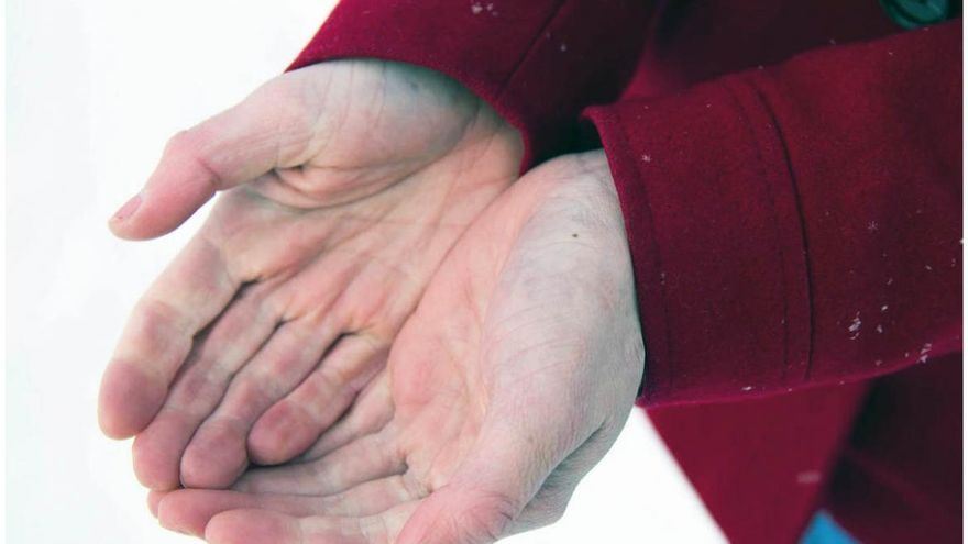 Efectos de la esclerodermia