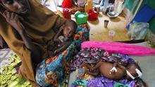Cinco datos del último informe de la ONU sobre el hambre en el mundo